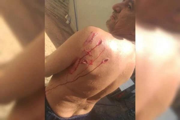 Vídeo: banhista é atacado por capivara no Lago Paranoá